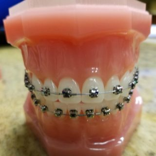 6 Things to Consider When Choosing an Orthodontist