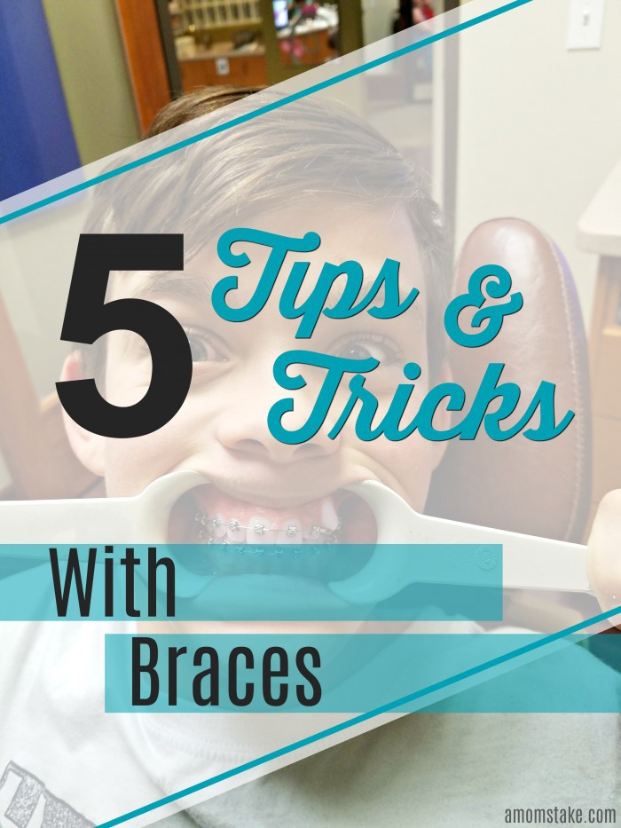 5 Tips and Tricks to help you out on your Orthodontics adventure. AD