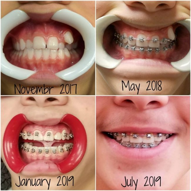 This image has an empty alt attribute; its file name is Braces-Journey-650x650.jpg